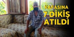 Tarsus'ta darp edilen şoförün kafasına 8 dikiş atıldı